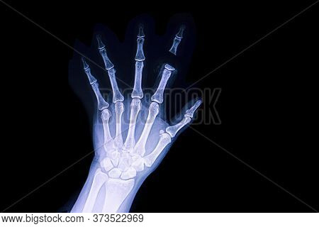 A Hand X Ray Film Of A Patient With Traumatic Amputation Of His Index Finger.