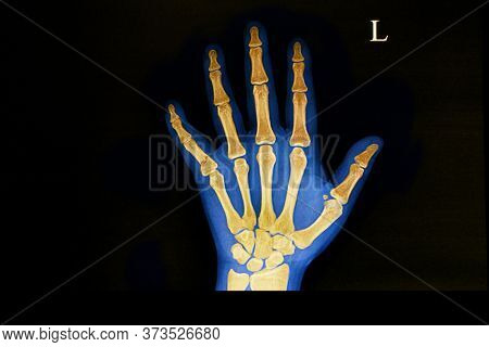 A Hand X Ray Film Of A Patient With Traumatic Fracture Of The Base Of His Fifth Metacarpal Bone.  Th