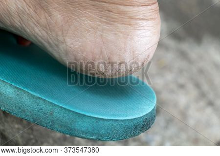 Feet With Dry Skin And Cracked Heels Of Woman From Dirty. Concept Treatment Skin Care Foot And Medic