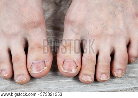 Close-up Of Big Toes With Ugly Broken Yellow Nails And Calluses