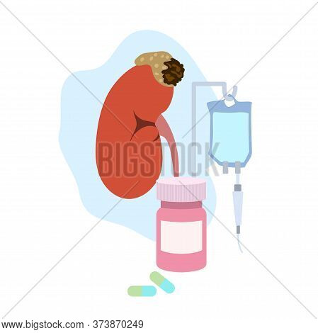 Adrenal Gland Tumor. Disease. Treatment, Pills, Bottle, Drop Counter, Dropper. Medical Flat Anatomy