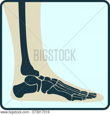 Leg Bone, X-ray Concept Icon, Roentgen Human Body Image Isolated On White, Flat Vector Illustration.
