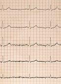 Pulse trace of oscilloscope for a electro-encephalogramme (EEG) for search epilepsie poster