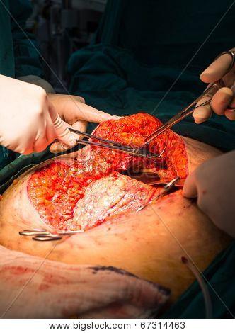 explore laparotomy to in tra abdomen washing poster
