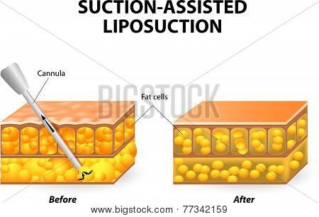 Mechanism of liposuction. Suction-assisted liposuction. hollow tube (cannula) which is inserted through a small incision in the skin  in order to fat suctioned out of the body poster