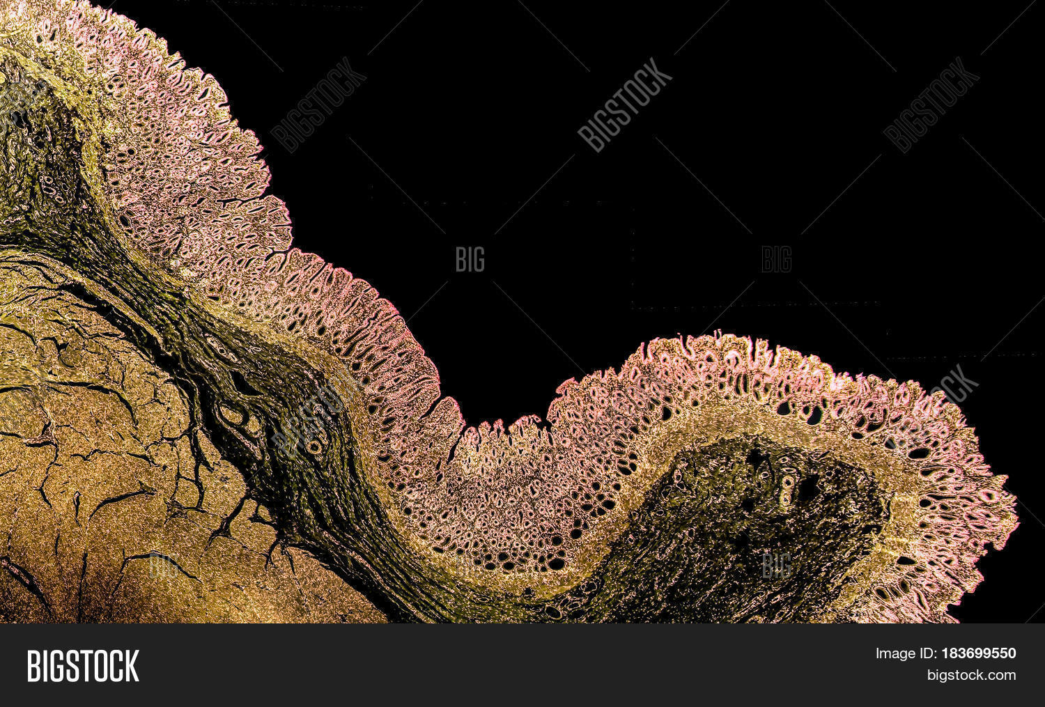 Cross Section Normal Image Photo Free Trial Bigstock