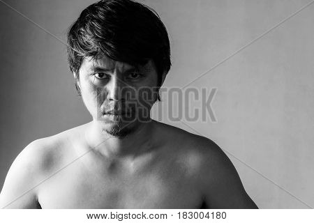 Portrait Of Stressful Naked Man