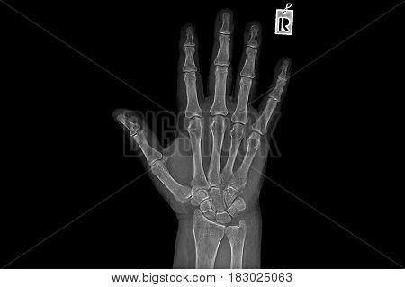 Negative X ray image of human hand Rheumatism
