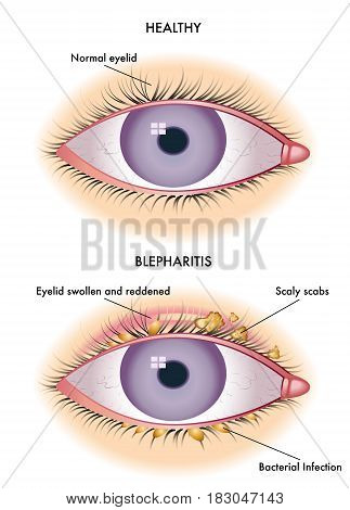 vector medical illustration of the symptoms of blepharitis