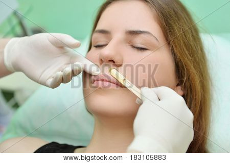 Removing the mustache of a woman with hot wax in a beauty salon. Beauty salon mustache depilation