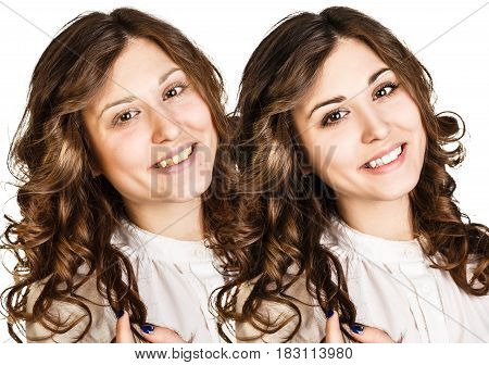Portrait of young woman before and after retouch.