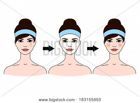 Step-by-step use of facial masks from acne on white background.