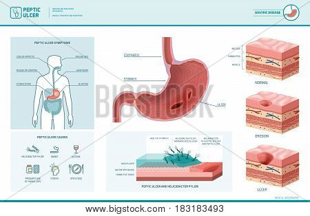 Peptic ulcer and helicobacter pylori infographic with symptoms and causes stomach cross section diagram medical illustration