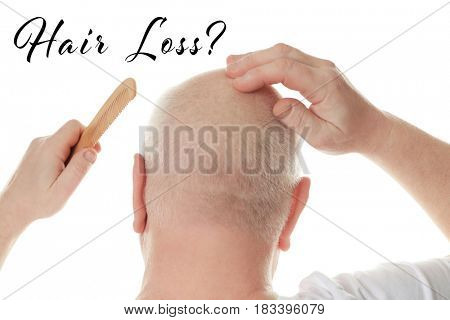 Hair loss concept. Senior man with comb on white background