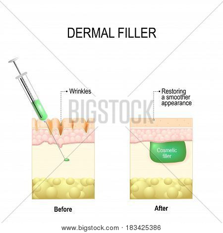 injectable cosmetic filler or Dermal fillers. vector