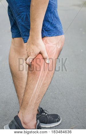 calf injury in humans .calf pain,muscle pains people medical