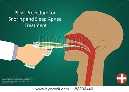 Vector illustration of procedures for sleep apnea pillar operation.