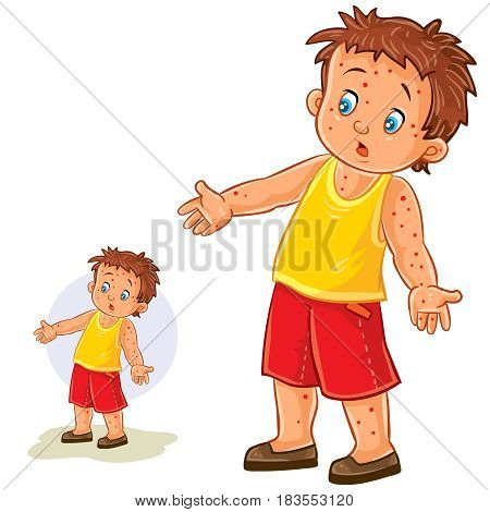 Vector illustration of a little boy with a rash on his hands and legs, chickenpox, smallpox, allergies. Print