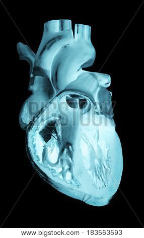 A Negative radiograph of a human heart