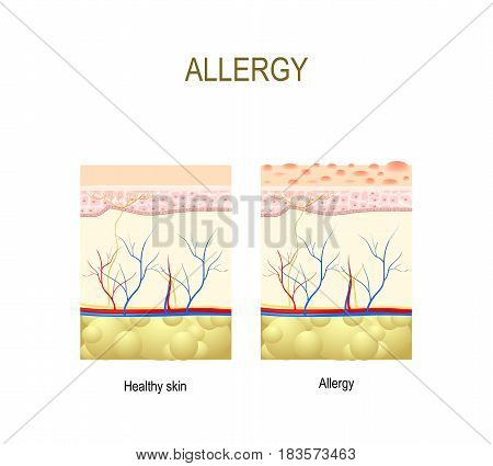 Allergy. healthy and skin with allergic reaction. cross-section of the human skin