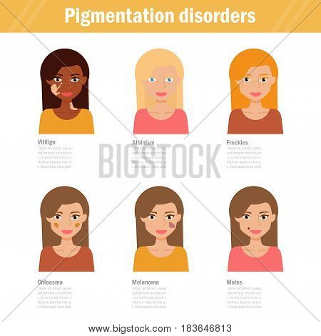 Pigmentation disorders. Isolated art on white background. Vector. Cartoon. Flat. For websites, brochures magazines Medicine