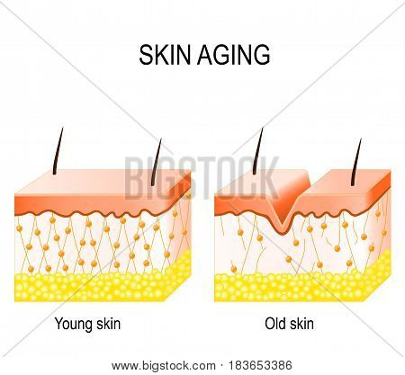 Aging skin. Cross section young and old skin. The diagram showing the decrease in collagen and broken elastin in older skin.