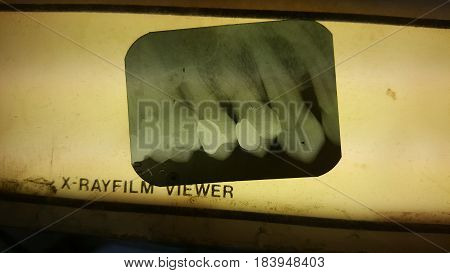 X-ray film of tooth put on x-ray film viewer.