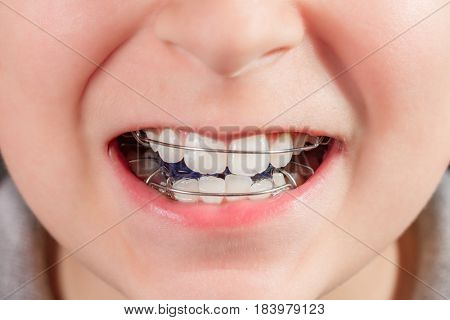 Child with orthodontic appliance close-up