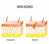 Aging skin. Cross section young and old skin. The diagram showing the decrease in collagen and broken elastin in older skin. poster