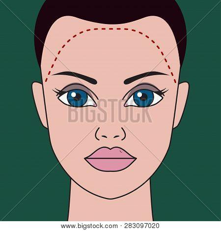 Hair Transplantation In Women, Correction Of Receding Hairline, Plastic Surgery For Hair Transplanta