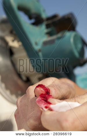 Carpenter With Blood On His Hand. Accident At Work.