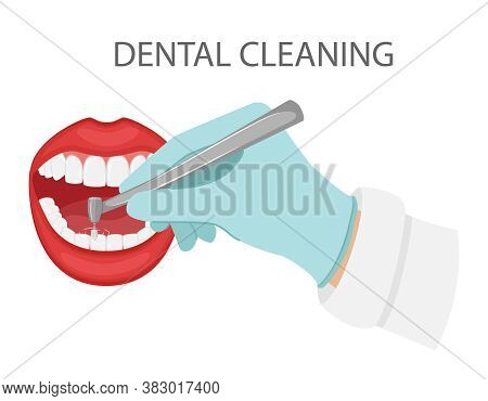 Dental Cleaning Of Teeth. A Gloved Hand Holds A Dental Polishing Drill.cosmetic And Aesthetic Dentis