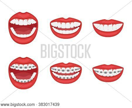 Teeth In The Mouth With Or Without Braces.open And Closed Mouth With Red Lips. Aesthetic Dentistry.o