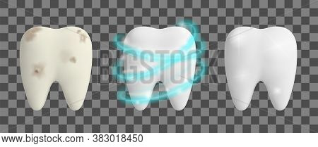 Clean And Dirty Tooth. Teeth Whitening Process. Dental Health Design Concept. Realistic Vector Illus