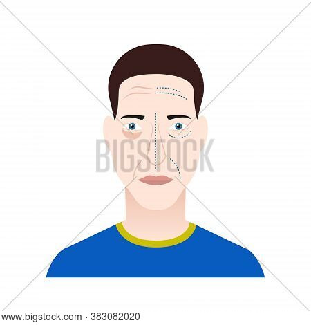 Man face before and after face lifting Vector illustration in flat design Isolated portrait of elderly man with surgery markers on his face