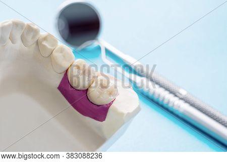 Closeup / Implant Prosthodontics Or Prosthetic / Tooth Crown And Bridge Implant Dentistry Equipment