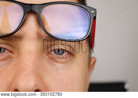 The Man Takes Off His Glasses And Shows Tired Red Eyes On A White Background. Concept Of Eye Fatigue