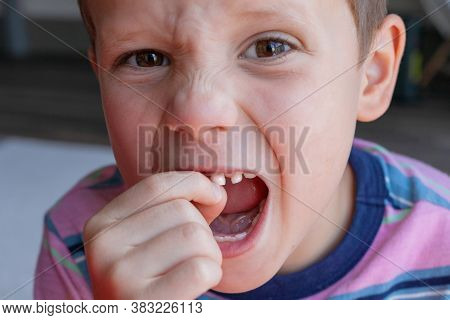 Process Of Removing A Baby Tooth. Brave Strong Boy Pulls Out His Own Tooth. Loss Of Healthy Baby Tee