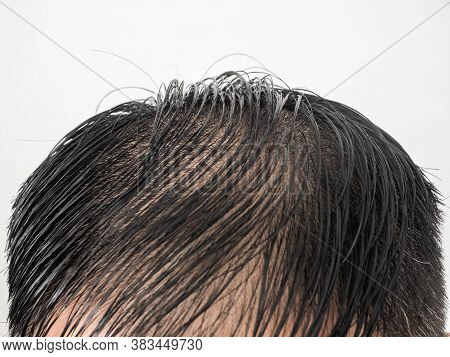 Close Up Some Hairstyles Of Many Man Serious Hair Loss Problem For Hair Loss Concept Or Health Care