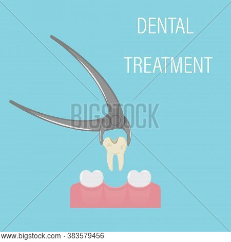 Dental Tooth Extraction. Exodontia. The Tooth In The Dental Forceps. A White Clean Tooth Is Clamped