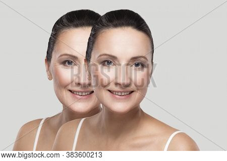 Before And After Beauty Skin Wrinkles Treatment Procedure. Middle Aged Brunette Woman Looking, Tooth