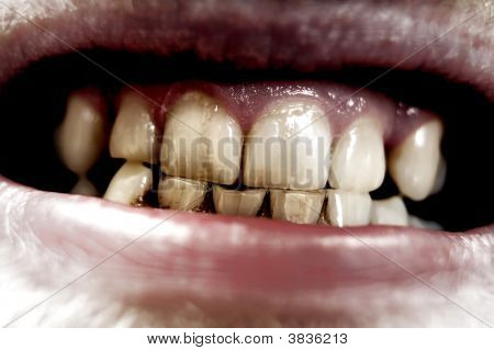 Aggressive Teeth