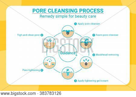 Blackheads Removing And Pore Cleansing Process. Pore Cleansing Process With Flat Color Style. Acne O