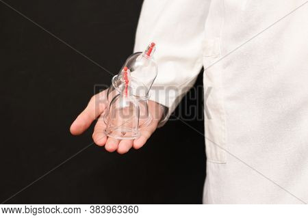 Jars For Hijama, Bloodletting, In The Hands Of A Doctor In A White Coat On A Black Background. Hijam