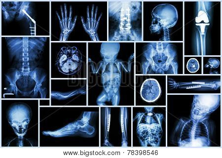 Collection X-ray Multiple Adult And Child's Organ & Orthopedic Surgery & Multiple Disease