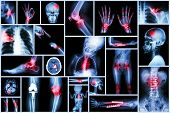 Collection X-ray multiple human's organ & orthopedic surgery & Multiple disease (Pulmonary tuberculosis , Gout , Rheumatoid arthritis , Spondylosis , Fracture bone , Stroke ,  Brain tumor , etc) poster