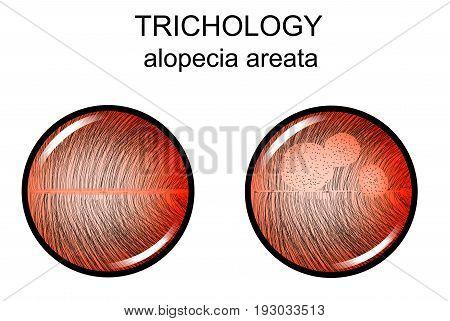 vector illustration of alopecia areata. trichology. dermatology