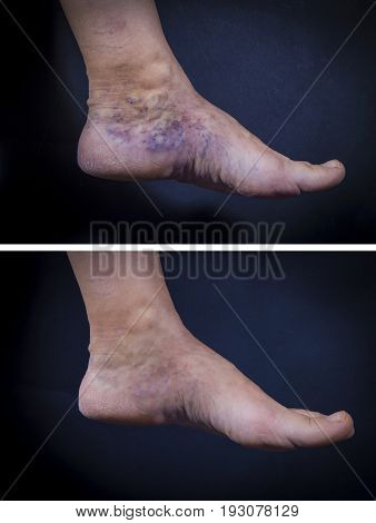 Human Foot With Varicose Veins Before And After