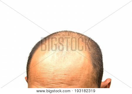 Head of man lose one's hair glabrous on his head for elderly man