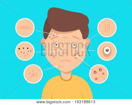 Male Facial Skin Problems Vector Illustration. Acne And Dark Spots, Wrinkles And Circles Under The E